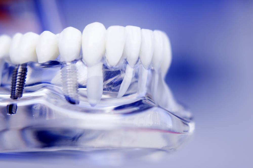 El 3D llega a las clínicas dentales