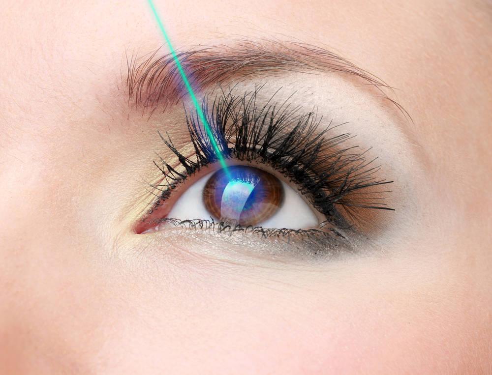 Lo que necesitas saber sobre la operación láser de miopía